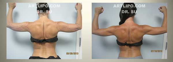 Arm Liposuction Tampa Lipo Of Upper Arms Florida