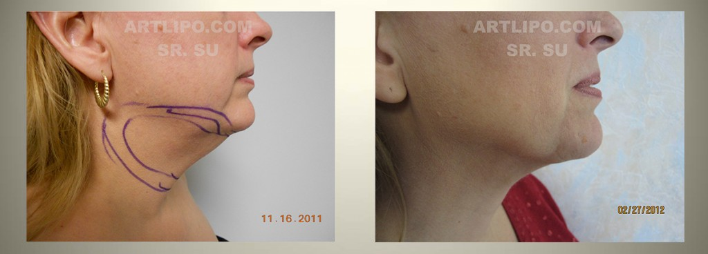 neck lipo - before/after