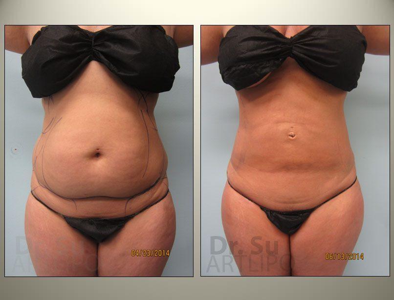 Skin Tightening Liposuction Tampa | Skin Removal Florida