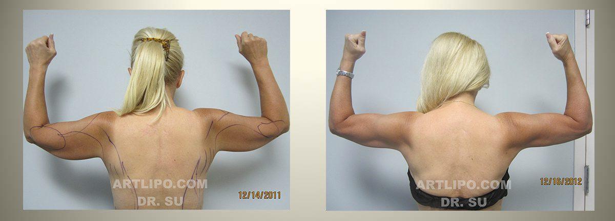Skin Tightening Liposuction Tampa Skin Removal Florida