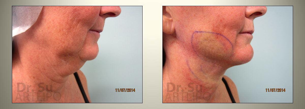 Face Lift Liposuction