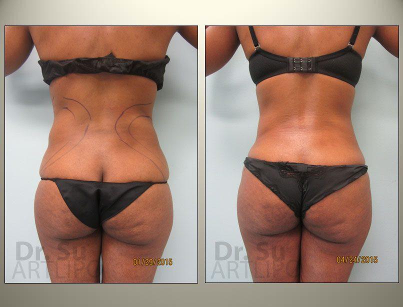 Best-Liposuction-Expert-Brazilian-Butt-Lift-BBL-Tummy-Tuck-Abdomen