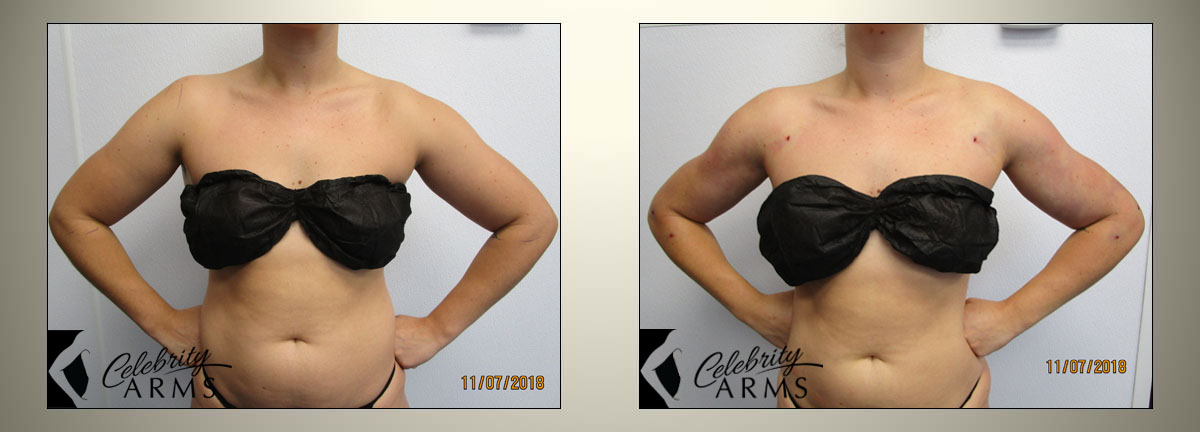 Lipedema-Liposuction-Surgery-Treatment-Cure-Lipo360-Celebrity-Arms