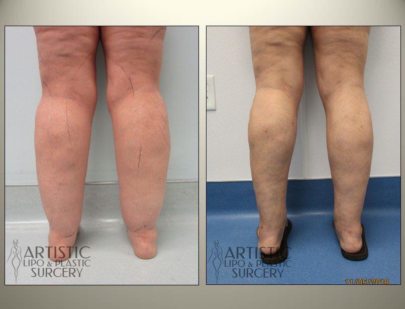 Lipedema-Liposuction-Surgery-Treatment-Cure-Lipo360-Legs
