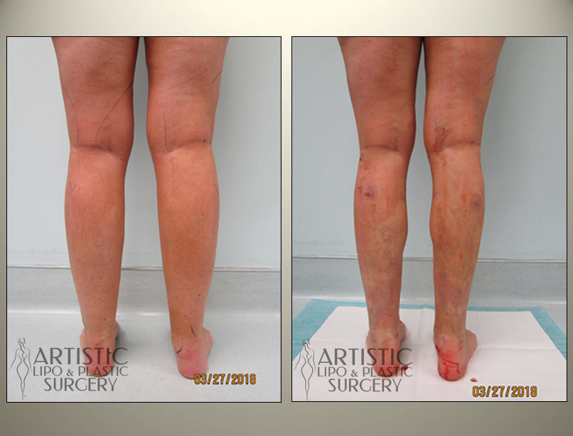 Ankles Cankle Liposuction Surgery Before And After Photos Art Lipo