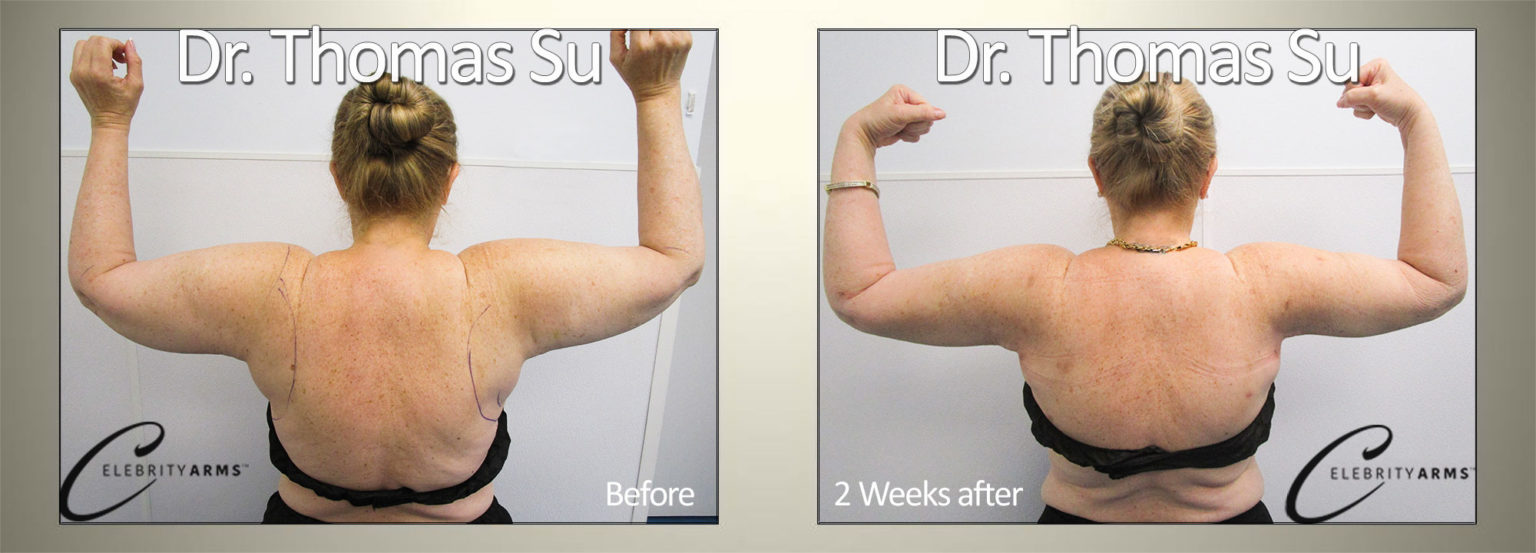 Arm-Liposuction-Lipo360Arms-Lift-High-Definition-Arms-Tampa-Florida-USA5-1-1536x553 (1)