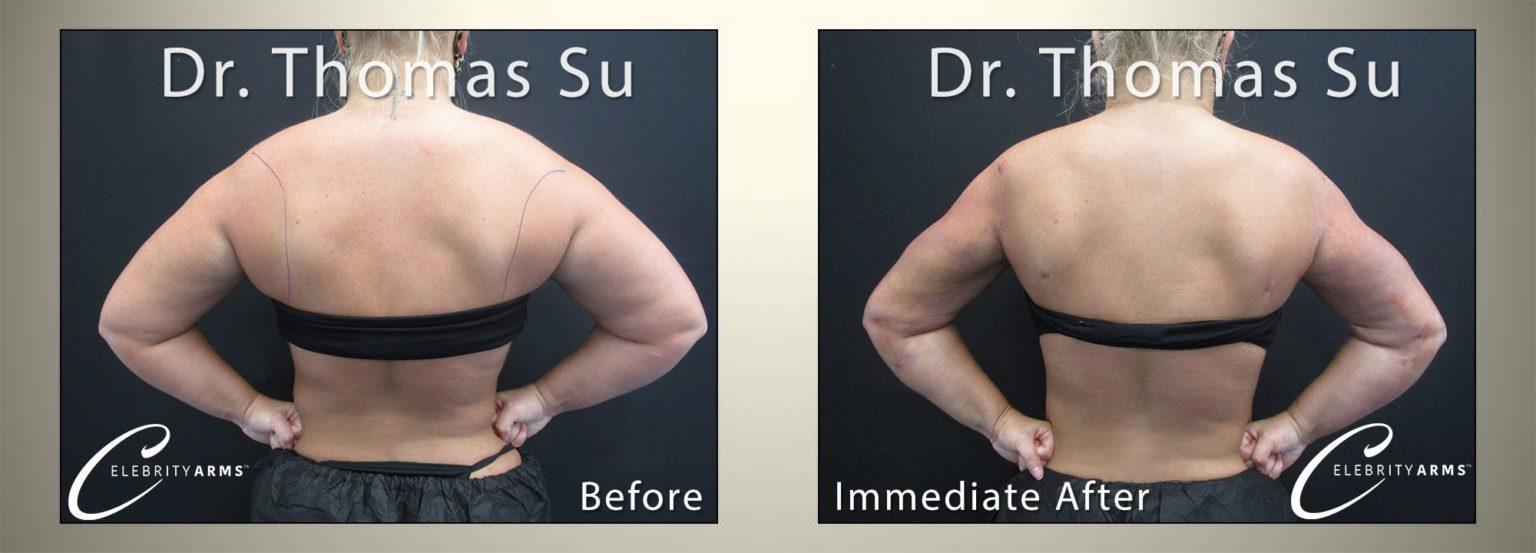 Arm-Liposuction-Lipo360Arms-Lift-High-Definition-Arms-Tampa-Florida-USA6-1536x553