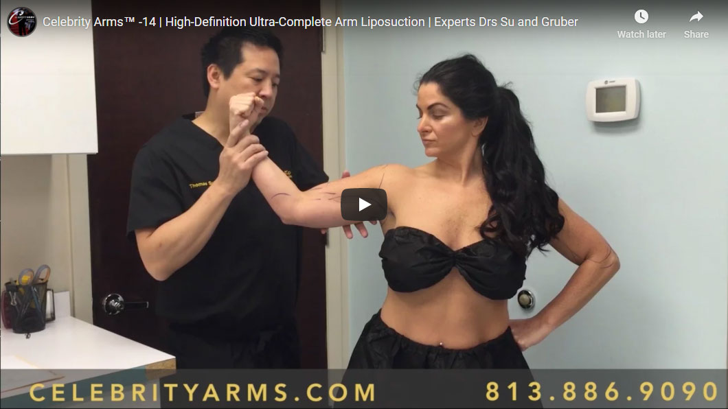 High-Definition-Ultra-Complete-Arm-Liposuction