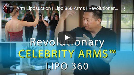 Revolutionary-Celebrity-Arms-Lipo-360