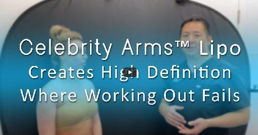 lipo-360-arms-celebrity-arms-liposuction